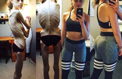 Emelle Lewis: «Instagram mi ha salvata dall'anoressia»